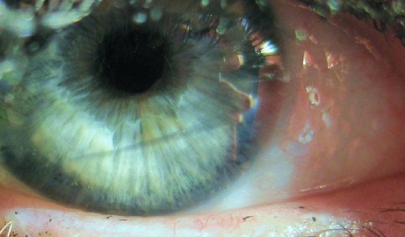 my-eye